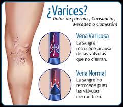 varices