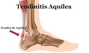 Tendinitis brazo izquierdo biodescodificacion